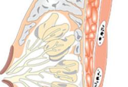 腹壁下动脉穿支皮瓣专家共识