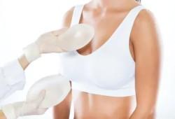 硅胶乳房假体隆乳术临床技术指南(2020版)