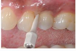Clin Oral Investig:次氯酸钠凝胶治疗种植体周围粘膜炎的效果欠佳