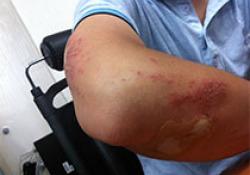 吗替麦考酚酯治疗免疫相关性皮肤病专家建议