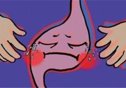 "Gastroenterology:神经激肽-1受体抑制剂Tradipitant对糖尿病<font color=""red"">性</font>和特发性胃轻瘫患者的疗效和安全<font color=""red"">性</font>分析"