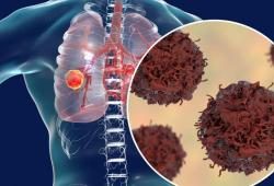 2020年肺癌十大重磅研究丨梅斯盘点