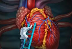 Circulation:替格瑞洛 PK 普拉格雷 用于接受介入治疗的ST段抬高型心肌梗死患者的预后