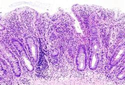 欧洲药品管理局批准Zeposia(ozanimod)治疗溃疡性结肠炎