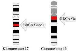 "Lynparza在日本获准用于治疗<font color=""red"">晚期</font>卵巢癌、前列<font color=""red"">腺癌</font>和<font color=""red"">胰腺</font><font color=""red"">癌</font>"