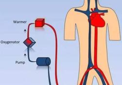 "Circulation:左心室卸负荷对采用VA-ECMO治疗的心源性休克患者近期死亡率的<font color=""red"">影响</font>"
