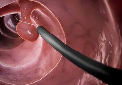 "BMJGastroenterology:儿童行胃肠内镜检查前的年龄和<font color=""red"">疼痛</font>评分是操作后<font color=""red"">疼痛</font>的预测指标"