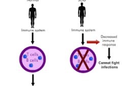 ASH 2020:抗CD117单克隆抗体JSP191用于治疗严重联合免疫缺陷病(SCID)