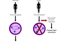 "ASH 2020:抗CD117单克隆抗体JSP191用于治疗严重联合<font color=""red"">免疫</font>缺陷病(SCID)"