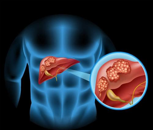 Dig Liver Dis:高体重指数和饮酒对肝癌相关死亡率影响