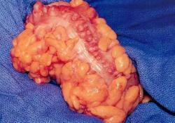 JGH Open:克罗恩病和溃疡性结肠炎患者得憩室炎住院费用差异的比较