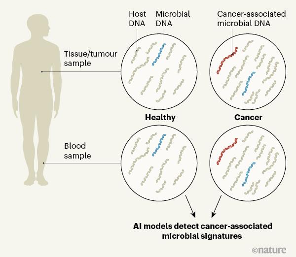 Nature:检测血液中微生物DNA,癌症早诊断