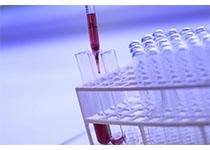 CLIN CHEM LAB MED:真空采血管欠充会导致血清和肝素血浆乳酸脱氢酶活性升高?
