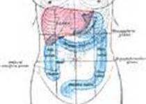 Gastroenterology:腺瘤及息肉切除后长期结直肠癌风险研究