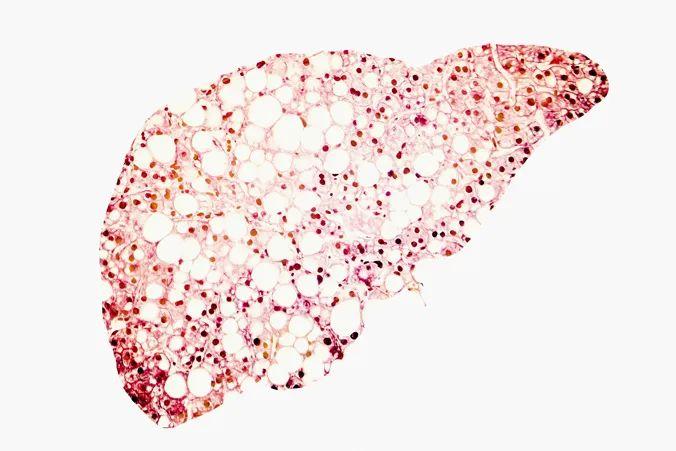J Diabetes Investig: 无论是否患有糖尿病,脂肪肝都会影响β细胞功能