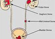 Clinica Chimica Acta:中國纖毛相關腎病患者中發現28個新的突變
