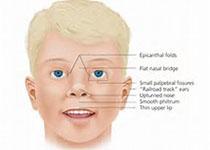 Allergy:皮下类过敏原免疫治疗在屋尘螨诱导的过敏性鼻炎和哮喘中的真实世界证据