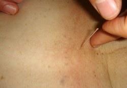 火针在皮肤科应用专家共识