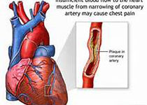 JACC:低剂量alteplase会增加ST段抬高型心梗患者微血管阻塞风险