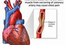 "JACC:低剂量alteplase会增加ST<font color=""red"">段</font>抬高型心梗患者微血管阻塞风险"