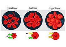 NEJM:Luspatercept用于治療輸血依賴型β地中海貧血