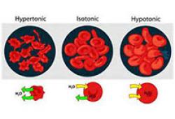 NEJM:Luspatercept用于治疗输血依赖型β地中海贫血