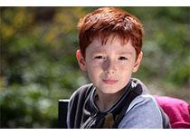 Stroke:青少年脑卒中患者局灶性脑动脉病