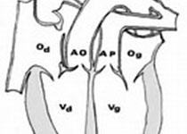 Stroke:有无主动脉瓣狭窄个体缺血性卒中的发生率