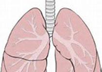 J Thromb Haemost:严重COVID‐19患者抗凝治疗与死亡率降低有关