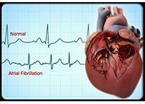 Heart:中国东北的房颤流行病学研究