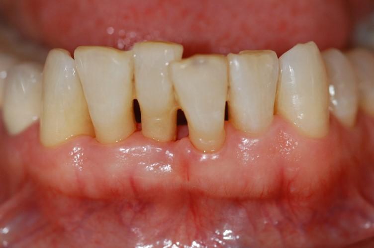 J Periodon Res: 牙周炎患者的维生素D水平