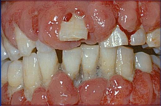 J Periodon Res: 氨氯地平诱导的牙龈增生中白细胞介素-17A表达升高