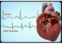 JAMA:Apabetone不能降低高危人群心血管事件风险