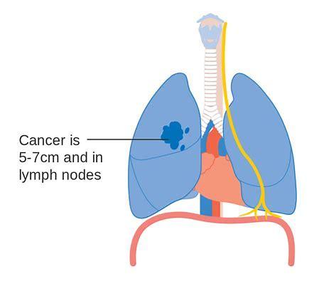 III期ADAURA试验:Tagrisso在EGFR突变型肺癌患者的辅助治疗中具有压倒性疗效