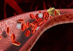 "Gastroenterology:胰腺癌患者的<font color=""red"">静脉</font><font color=""red"">血</font><font color=""red"">栓</font><font color=""red"">栓塞</font>发生率及危险因素"
