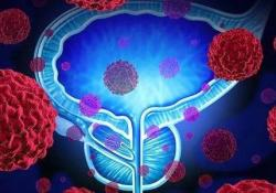 "IBD:<font color=""red"">放射</font><font color=""red"">疗法</font>治疗IBD合并前列腺癌的不良反应发生率"