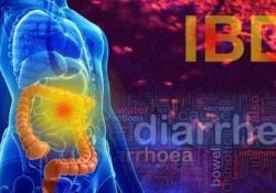 IBD:克罗恩病和溃疡性结肠炎黏膜愈合时的戈利木单抗水平