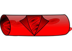 """Clinica Chimica Acta:基于光学相干断层观察研究分析胆固醇摄取能力(HDL功能的新指标)与冠状动脉斑块<font color=""""red"""">特性</font>的关联"""