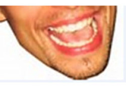 "J Periodontal Res:苯妥英钠改善<font color=""red"">牙龈</font>成纤维细胞老化与自噬相关"