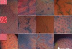 经典永流传-Pit Pattern分类,测一测你能否正确诊断?