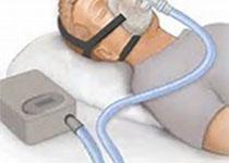 Diabetes Care:阻塞性睡眠呼吸暂停合并心血管疾病患者持续气道正压治疗、血糖与糖尿病风险