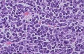 NEJM:达拉他单抗联合来那度胺和地塞米松治疗不适合自体干细胞移植的骨髓瘤