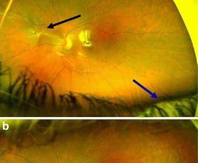 FDA授予大麻素PPP003(HU308)预防增生性玻璃体视网膜病变的孤儿药称号