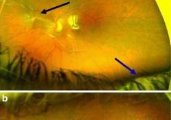 "FDA授予<font color=""red"">大麻</font>素PPP003(HU308)预防增生性玻璃体视网膜病变的孤儿药称号"