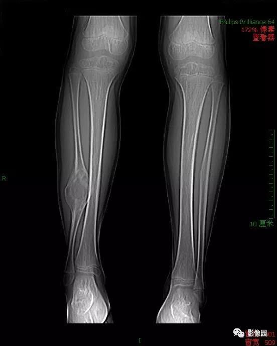儿童女性,右下肢跛行半年,请诊断!
