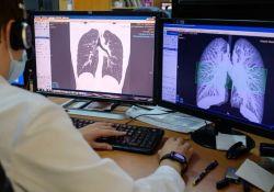 Nature: COVID-19如何致人死亡?新冠肺炎的治疗难题