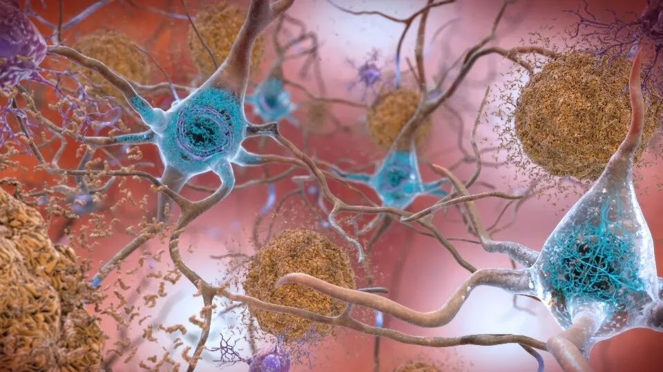 "JAMA: ""老年痴呆""高危人群福音:这种基因变异,或能让他们躲过认知衰退"