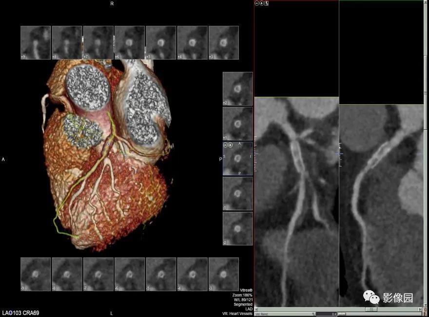 女性,间断胸闷、胸痛3年,请诊断!