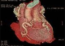 Circulation:高出血风险(HBR)患者经皮冠状动脉介入植入药物洗脱支架的长期预后