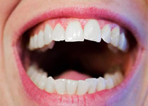 J Periodon Res:常见的精神障碍与牙周炎的相关关系